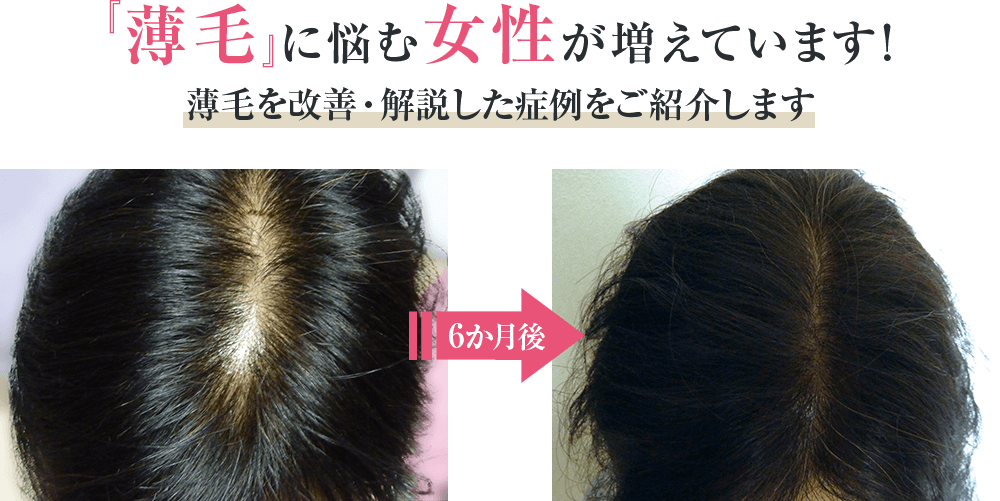『薄毛』に悩む女性が増えています!薄毛を改善・解説した症例をご紹介します